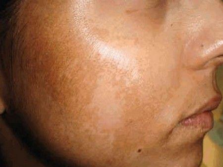 Mejores 41 im genes de como quitar manchas en la piel en - Como sacar las manchas ...