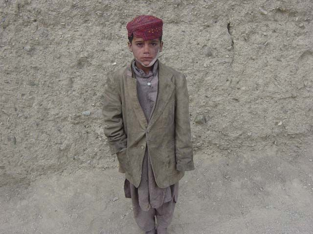 Afghanistan War Child in #Afghanistan