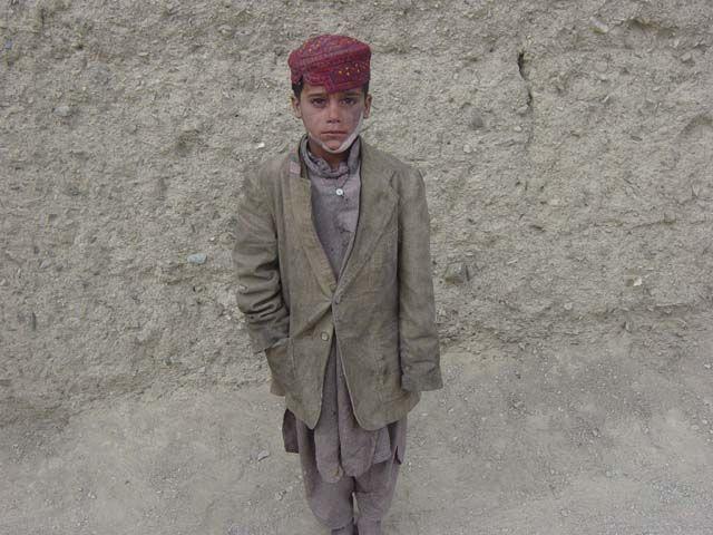 Afghanistan War Child in #Afghanistan