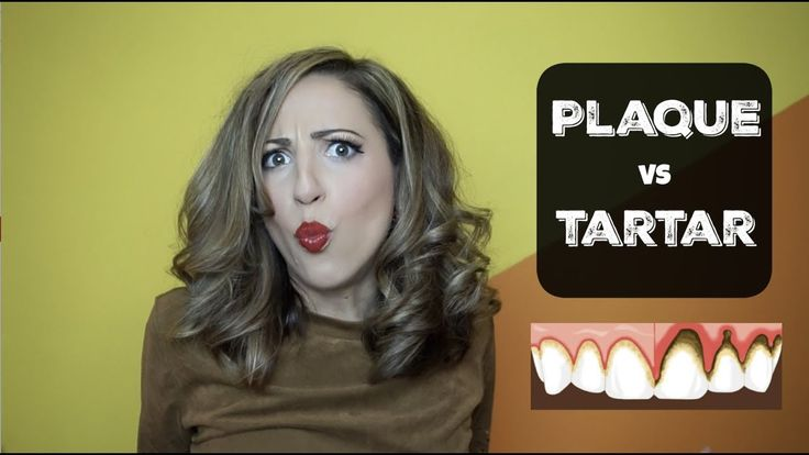 How to remove plaque versus tartar youtube plaque