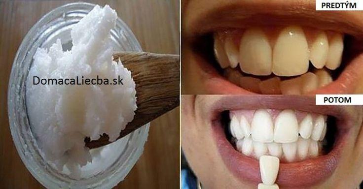 Dajte zbohom zlému dychu, zubnému kameňu a zničte zlé baktérie s pomocou jedinej suroviny