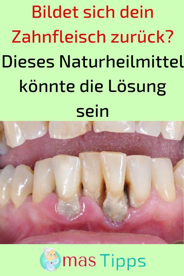 Bildet sich dein Zahnfleisch zurück? Dieses Naturheilmittel könnte die Lösung…