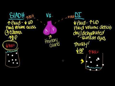 SIADH vs. DI - http://nodiabetestoday.com/diabetes/siadh-vs-di-2/?http://www.precisionaestheticsmd.com/