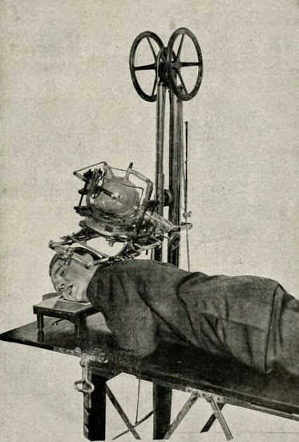 And patients complain now adays!!???!!!!!!!!  This is an old x-ray machine. Look how happy and comfortable the patient looks... Do you think we've made a few advances since these days?