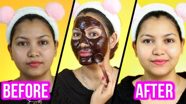 Chocolate facial is getting popular by day. Rich in antioxidants, chocolate helps reverse the signs of ageing.This Chocolate facial gives you instant Skin Brightening and Naturally Glow , It moisturizes your skin, protects the sun damage and tightens by maintaining the collagen production. Step 1 – Cleansing Soak towel in hot water. Remove excess water. …
