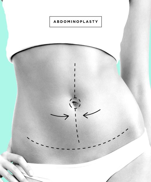 Tummy Tuck aka Abdominoplasty The surgery: Removes excess skin and stretch marks after pregnancy or weight loss -- directly removing skin, fat and tightening the abdominal wall. Average cost: $7,875 Procedure time: 2-6 hours Recovery time: 4-6 weeks for most #modern #drainless