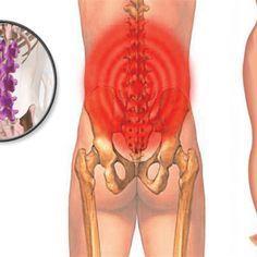 Wie man eine tiefe Piriformis-Dehnung bekommt, um Ischias-, Hüft- und Rückenschmerzen loszuwerden