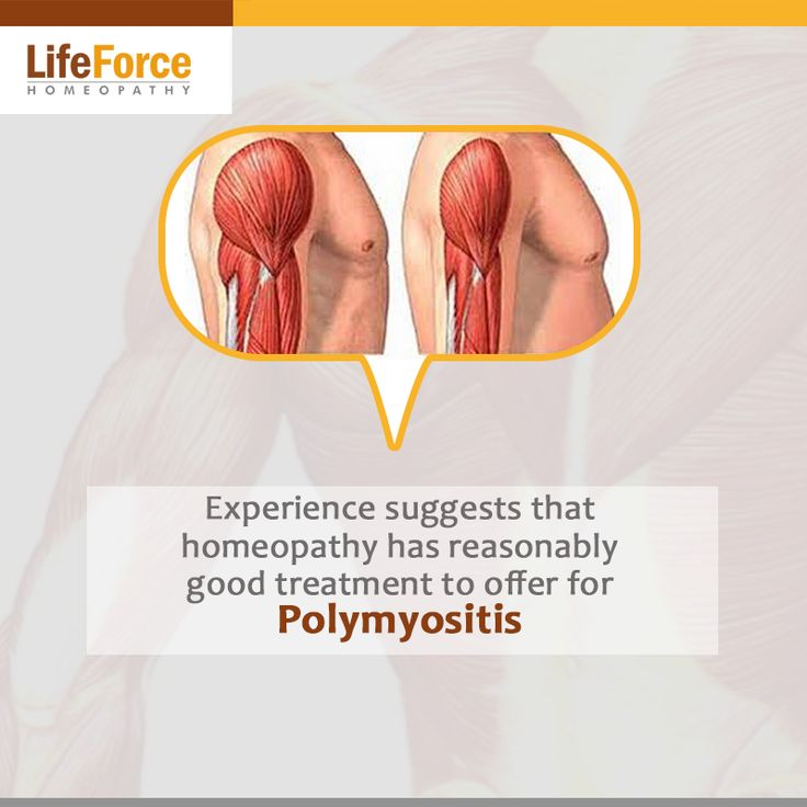 35 best images about polymyositis on pinterest | autoimmune, Muscles