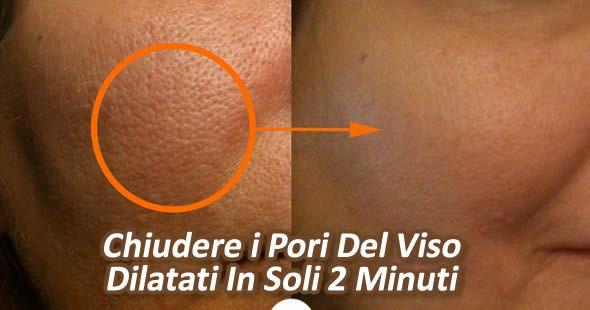 chiudere i pori del viso dilatati in soli due minuti