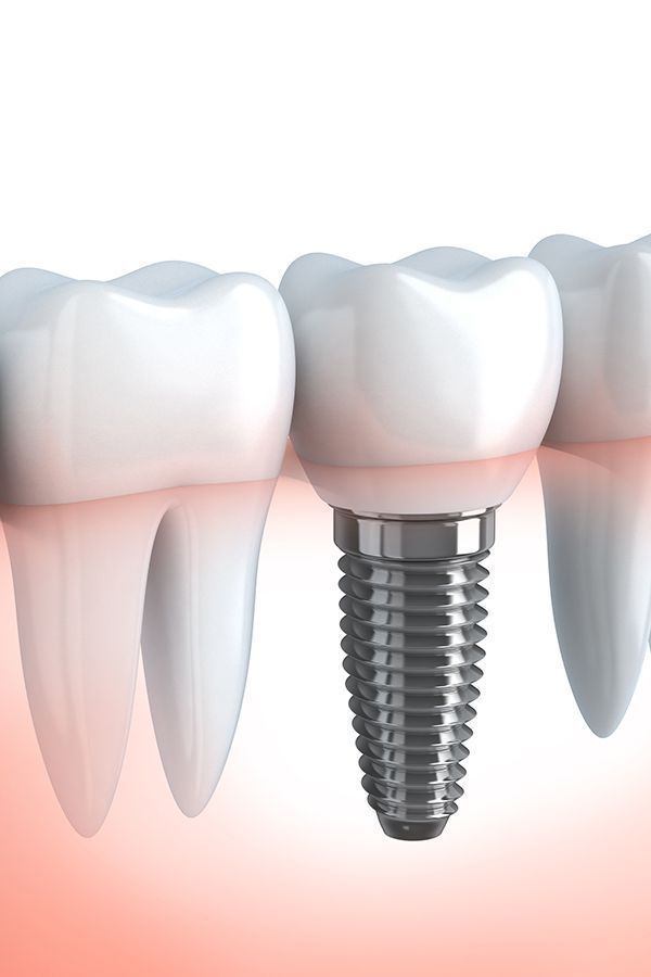 The Battle Over Tooth Implant And How To Win It Dental Crowns Teeth Implants Tooth Implant Cost