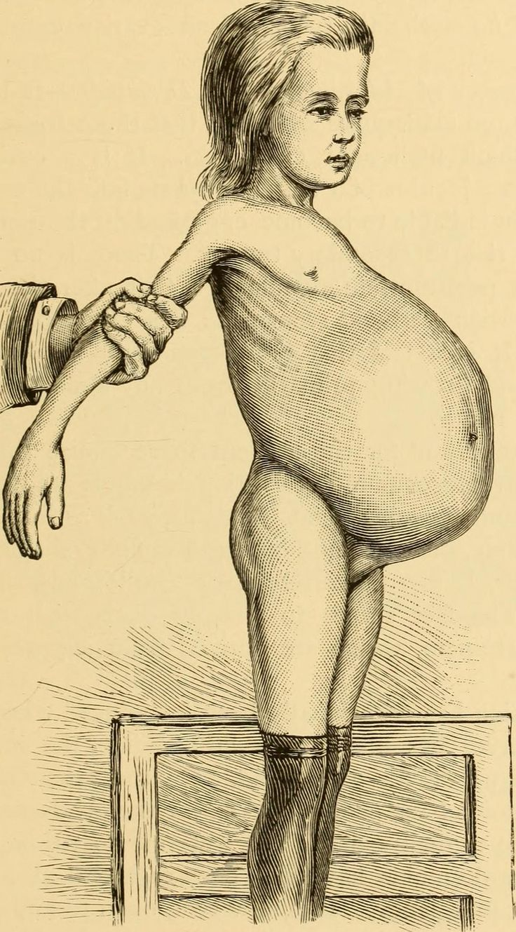 "Image from page 272 of ""The diseases of women : a handbook for students and practitioners"" (1897) - Foter"