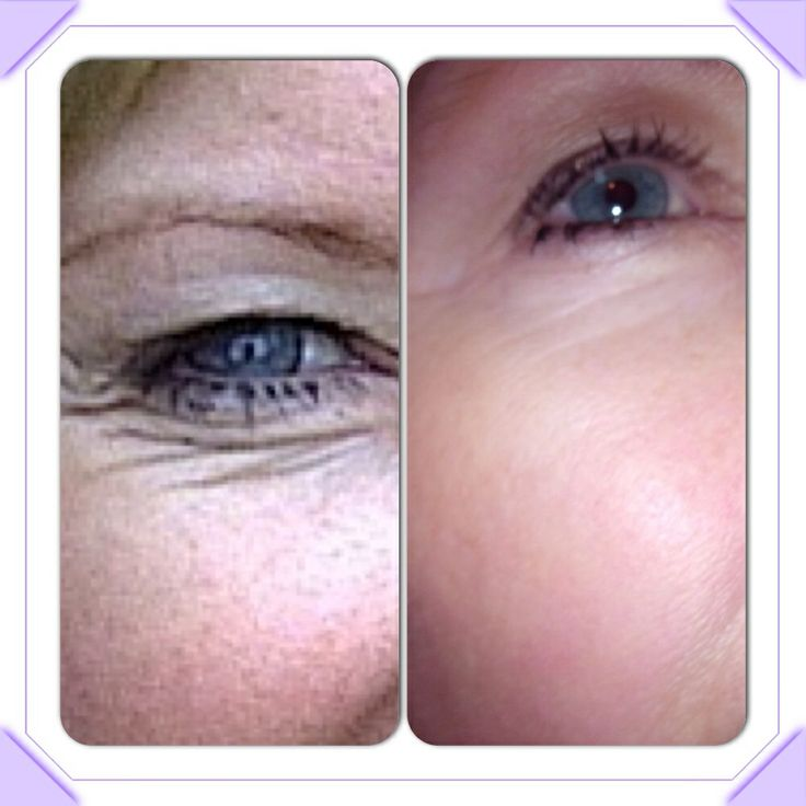 Just a few months with Nucerity Eye Effects and Skincerity rolled over top at night.