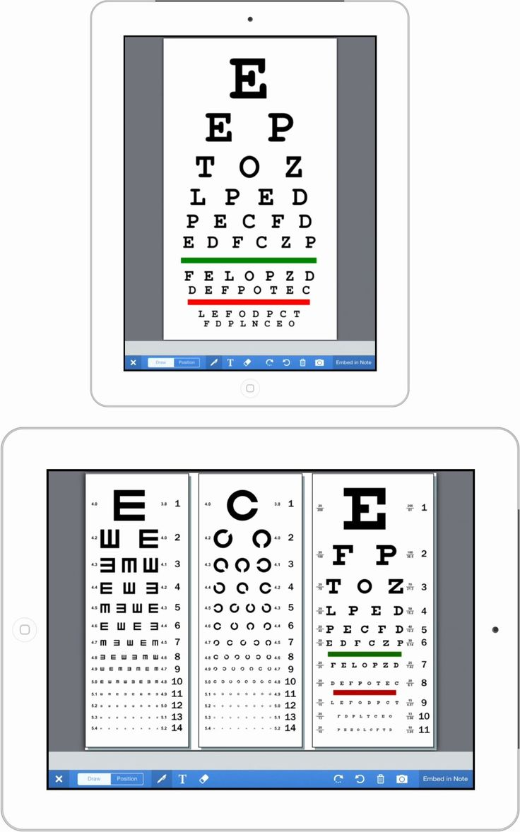 Eye Exam forms Template New Ehr News Drchrono in 2020