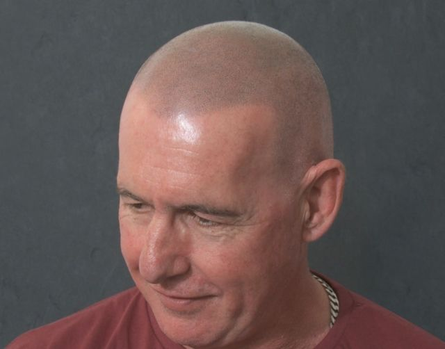 Les After Scalp Micropigmentation 2