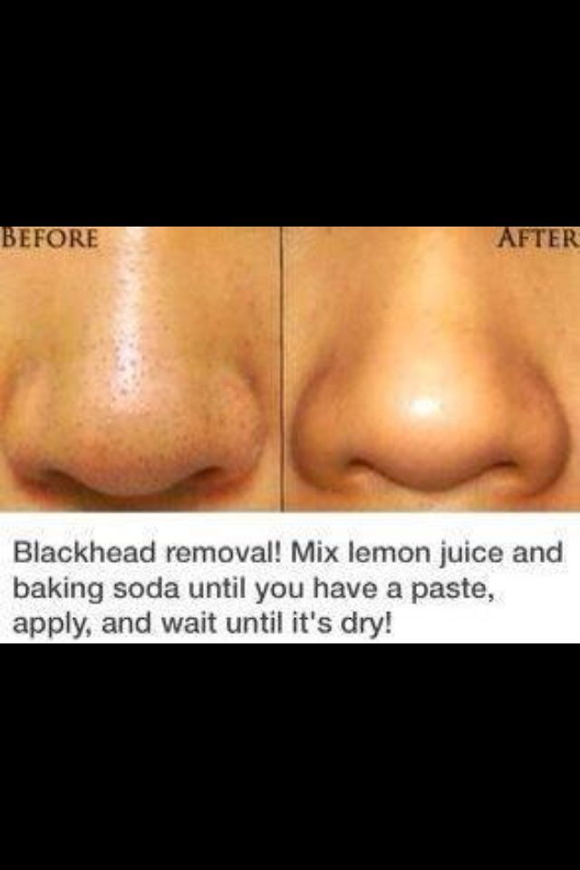 Blackhead removal naturally. Skin care.