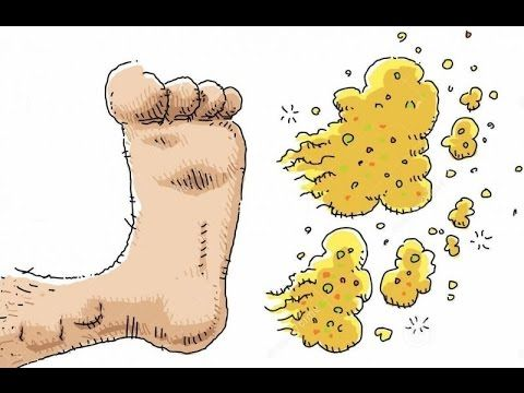 How To Get Rid Of Smelly Feet - YouTube