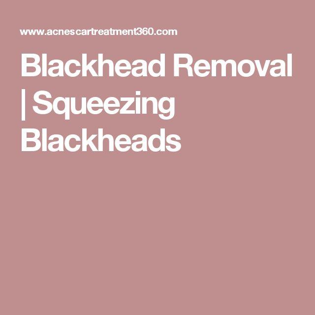 Blackhead Removal | Squeezing Blackheads