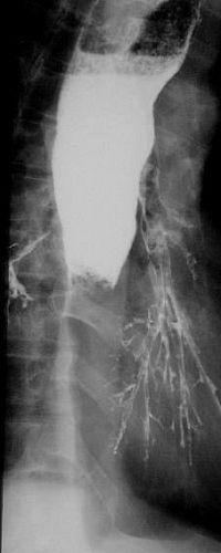 Photo of Complete obstruction to the flow of barium in this patient.  The proximal oesophagus is dilated and there is a sharp cut off  to the barium column characteristic for an impacted food bolus above a stricture.   In this patient barium has aspirated into the bronchial tree and is outlining the lower lobe bronchi. This is not a serious complication unless gastrografin contrast has been used instead of barium