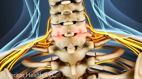 The facet joints of the cervical spine can degenerate just like the lumbar facet joints, which can lead to osteoarthritis of the cervical spine.  There are several symptoms of cervical spinal arthritis that differentiate it from other cases of osteoarthritis.