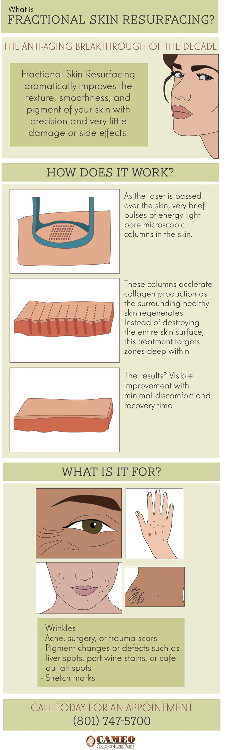 What is Fractional Skin Resurfacing? INFOGRAPHIC - #laserresurfacing #esthetics #cameocollege #esthetician