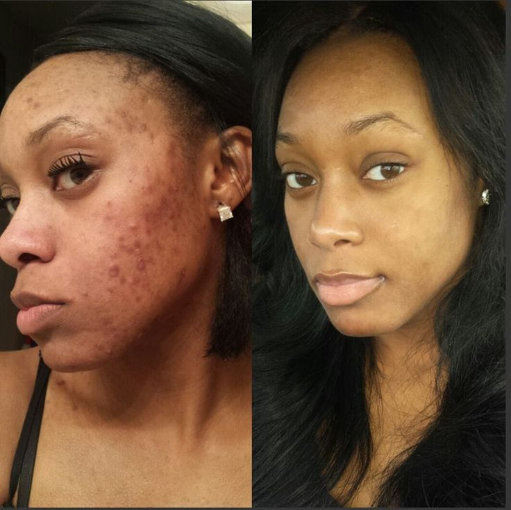 My Acne Story Amp Accutane Journey Before Amp After No