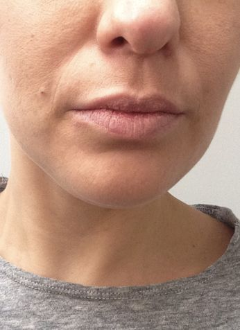 How to conceal a cold sore with make up