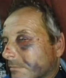 Article (May 21, 2013): California Police Beat Man Nearly To Death For Asking To Read His Ticket ~`*`~ A Berkeley truck driver is suing the California High Patrol for a brutal assault that brought him to the brink of death — provoked, according to a report by the local NBC affiliate, only by the man's request to read the ticket he was being given before he signed it.