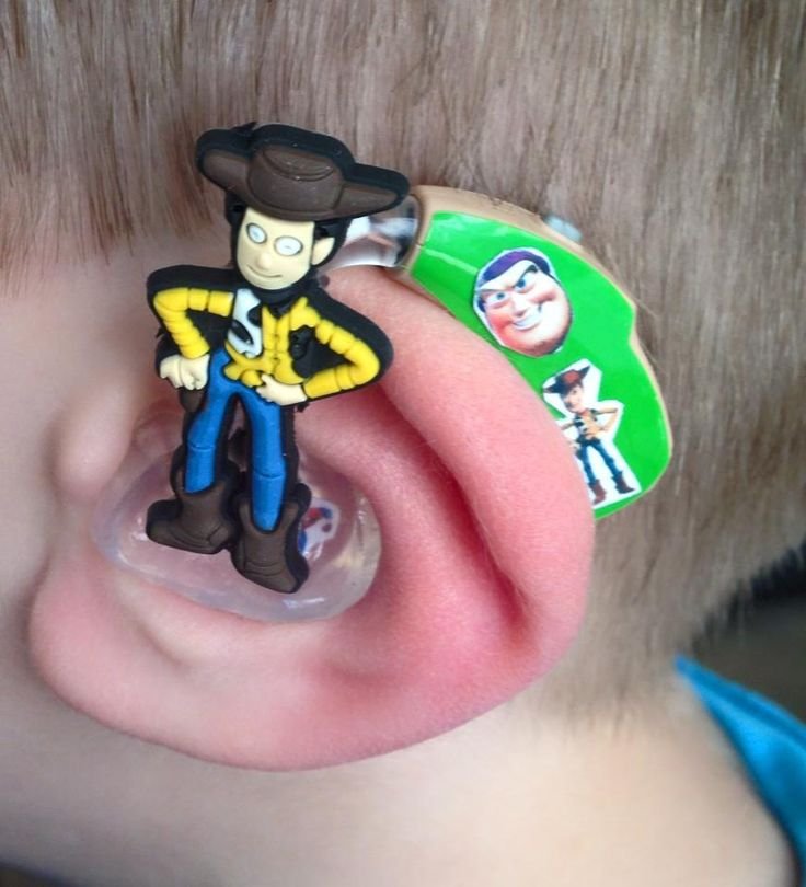 """Mom in the UK designs fun decorative Kits for Hearing Aids and Cochlear Implants: """"We hope that Lugs can help your child to love their device and wear them with pride."""""""