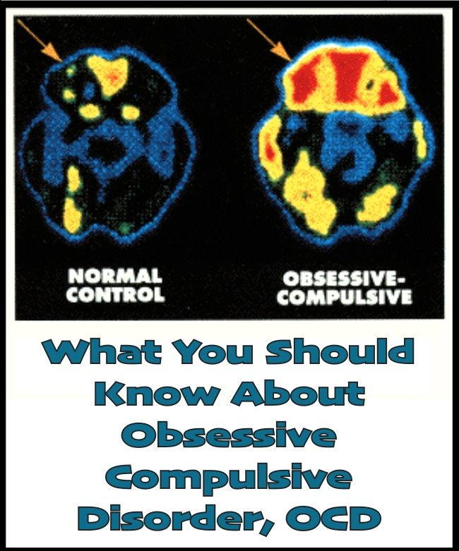 What You Should Know About Obsessive Compulsive Disorder, OCD