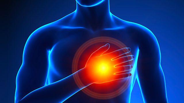 Forscher machen das Gen 'GNB3 C/T' teilweise für den Herzinfarkt bei Männern verantwortlich.