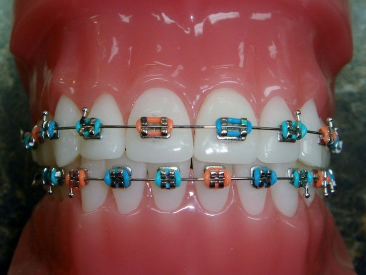 Gallery For Braces Colors Combinations