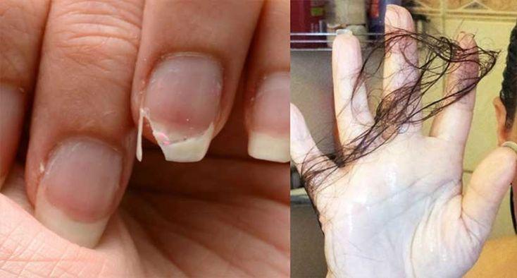 ¿Se te cae el pelo? ¿tienes la uña débiles y quebradizas? En ese caso, es muy probable que tengasproblemas con las glándulas suprarrenalesy no lo sabías. Aunque te parezca extraño, estas influyen en la salud
