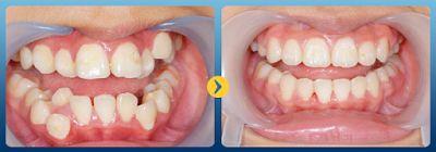 Niềng răng mắc cài sứ là phương pháp chỉnh nha bằng cách gắn các mắc cài sứ lên răng để đưa răng mọc lộn xộn, mọc lệch, mọc thưa, hô,… trở về đúng vị trí trên cung hàm và đảm bảo cấu tạo hàm vững chắc, chức năng nhai ổn định.