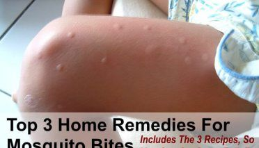 Top 3 Home Remedies for Mosquito Bites & How to Make Each One