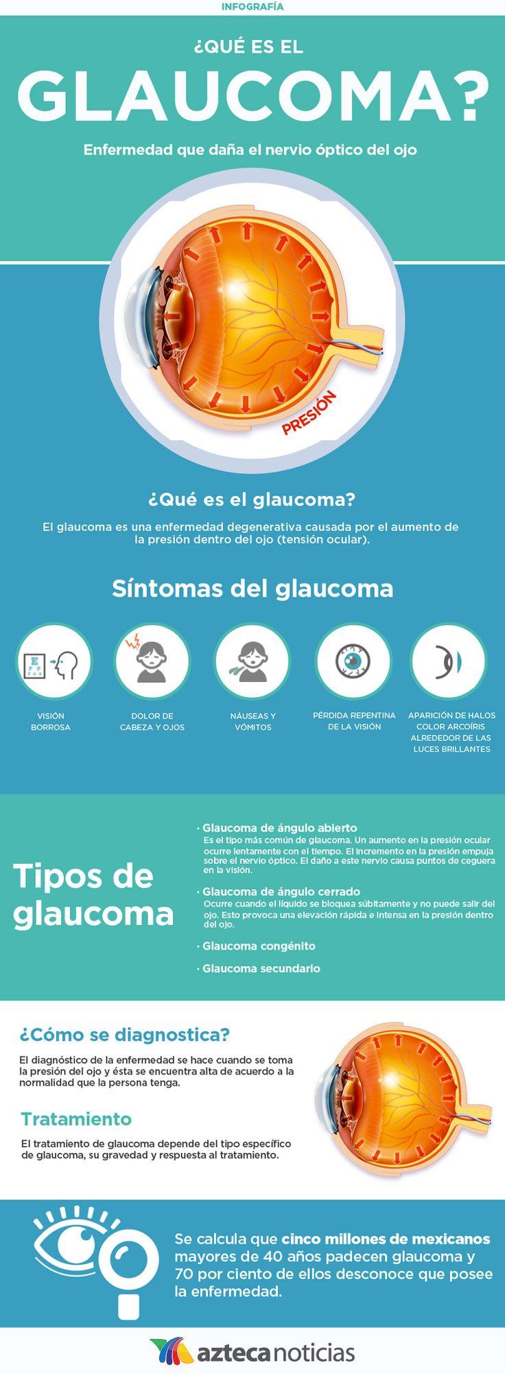 ¿Qué es el glaucoma? #infografia