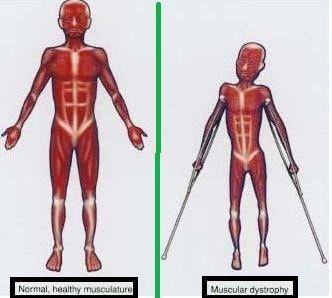 myotonic muscular dystrophy