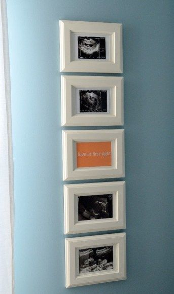 """What To Do With Those Sonogram Photos? Psalm 139:13-14 NIV in center picture frame. (""""For you created my inmost being; you knit me together in my mother's womb. I praise you because I am fearfully and wonderfully made; your works are wonderful, I know that full well."""") --- (great idea, I have at least 20 sonogram pictures just sitting in the pocket of my son's baby book. -MH)"""