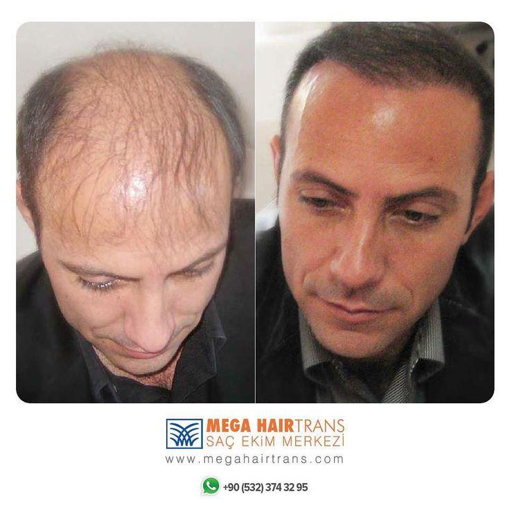 Saçlarda Dökülme Nedenleri  Erkeklerde ve kadınlarda beslenme yetersizliği, yanık, travma ve bunun gibi pek çok nedenle saç dökülmesi olabilmekle beraber en sık rastlanılan saç dökülme nedeni androjenik dediğimiz hormonal saç dökülmesidir. Bu tip dökülmede kalıtsal yatkınlık dışında, androjenik hormonlara (erkeklik hormonları) uzun süreli maruz kalınması da aynı tip saç dökülmesine neden olur.  www.megahairtrans.com #gultenunveren #megahairtrans #hairtransplant #hairtrans #sacekimi #saçekimi…