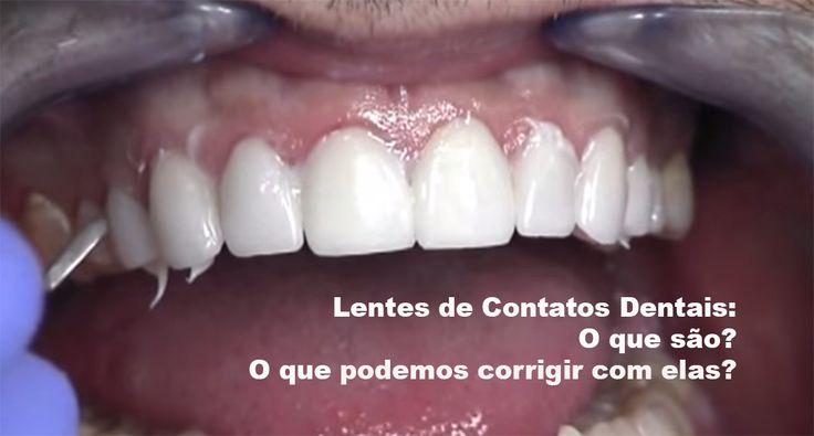As facetas em porcelana ultrafina, conhecidas como lente de contato dentais, são grande sucesso que veio para mudar a vida e melhorar a autoestima de muita gente que quer ter um sorriso mais bonito e uniforme. Essas facetas são projetadas para cobrir a superfície frontal dos dentes para melhorar sua aparência. As lentes de contato…