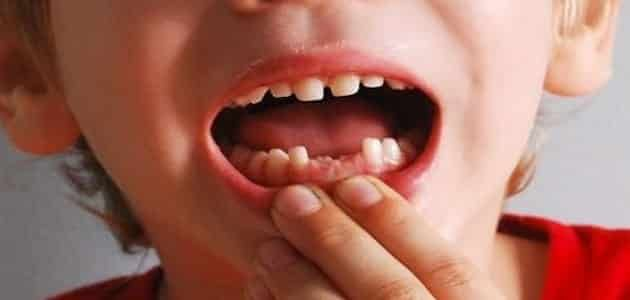 تفسير سقوط الأسنان في المنام لإبن سيرين Teeth