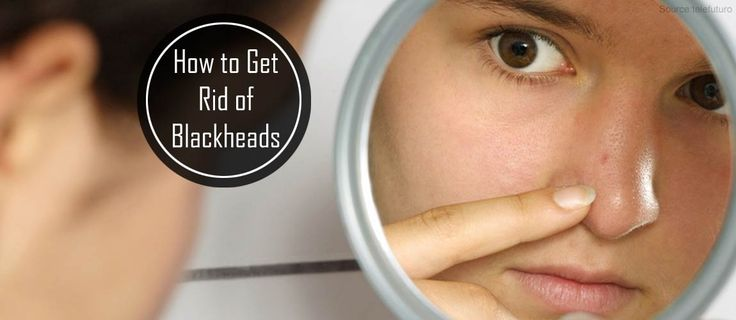 How to Get Rid of Blackheads? Blackhead Removal Mask