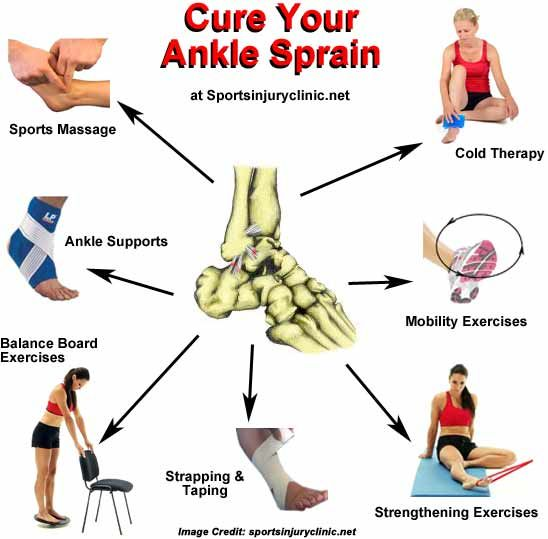 Image result for sprain causes, symptoms & treatments