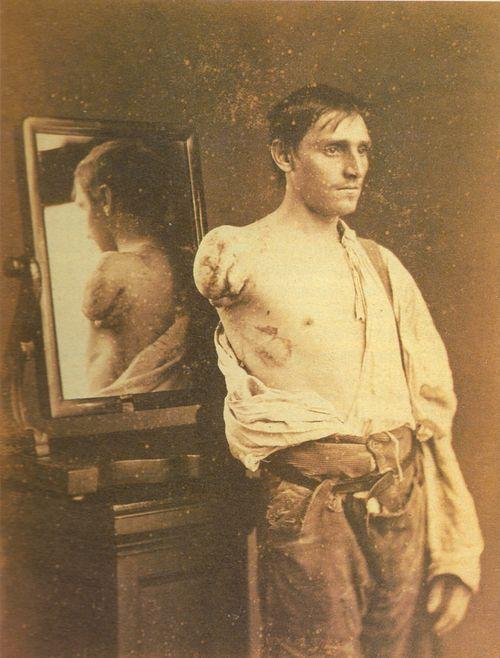 "Civil War, [portrait of a gentleman after amputation]  via Flesh World, ""Masterpieces of Medical Photography"""