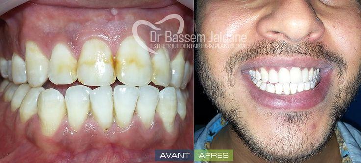 Les Facettes dentaires lumineers et veneers en Tunisie. Les facettes dentaires Lumineers sont très bien maîtrisées en Tunisie au cabinet du Dr Bassem Jaidane et font partie de la dentisterie esthétique en tunisie. Les facettes Lumineers® sont destinées pour donner un sourire éclatant de blancheur.