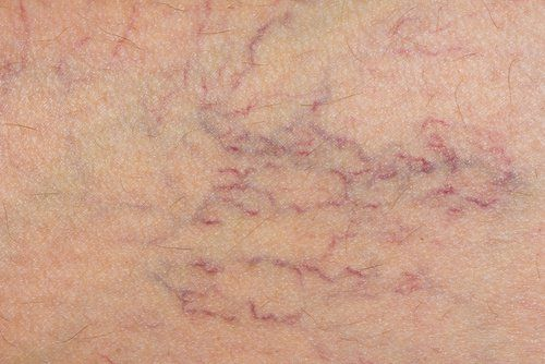 Tratamiento natural para prevenir las varices