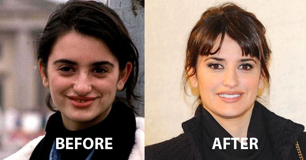 VERY Well done, Penelope. More than 20 years separate these two images of Penelope Cruz and you are much better off now. Nobody can assure you had your nose, eyes or lips done but its clear you look nomore like the ugly duck but like the elegant swan. Bravo!