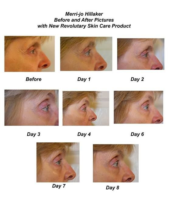 Merri-Jo Hillaker shows the reduction of the appearance of crows feet at the corner of her eye in just 8 days using Mannatech Uth