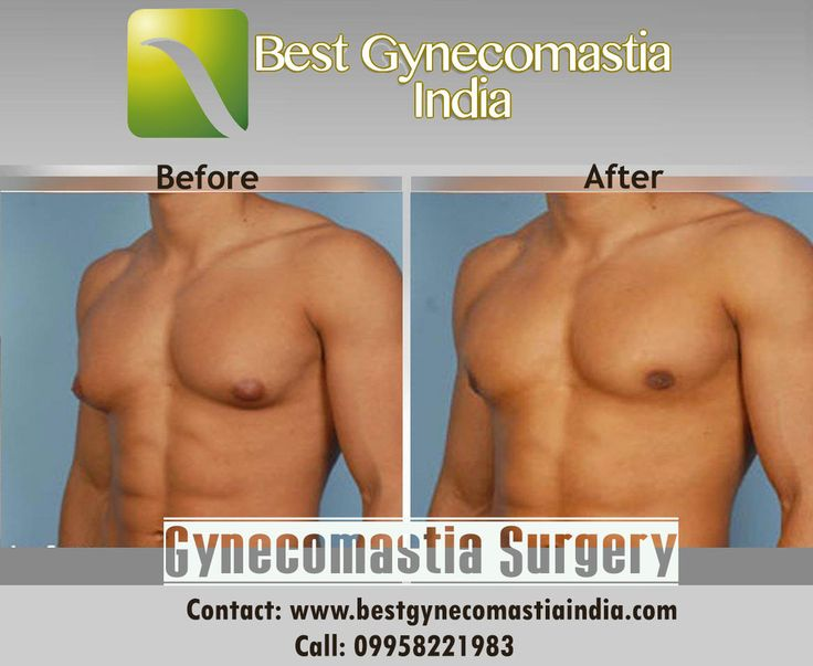 Male Breast Reduction Surgery in Delhi for male person. Get a suitable treatment plan with Dr. Ajaya kashyap, best gynecomastia surgeon in India. Book an Appointment Contact: www.bestgynecomastiaindia.com | 09958221983/81
