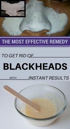 The Most Effective Remedy To Get Rid Of Blackheads…