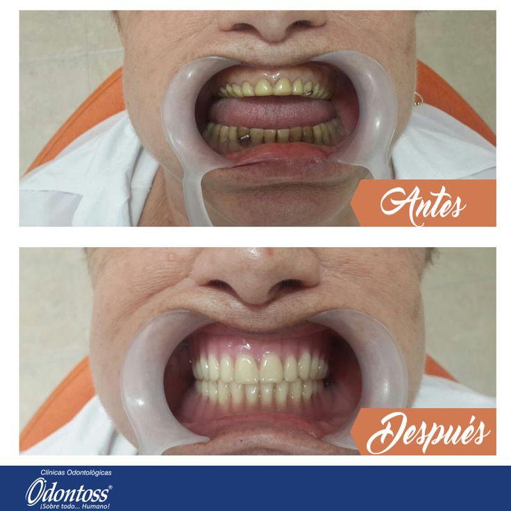 Cambio de prótesis total superior e inferior realizado por el Dr. Juan Fernando Arboleda en conjunto con el laboratorista Anderson Londoño. Sede Laureles. PBX: 444 00 62